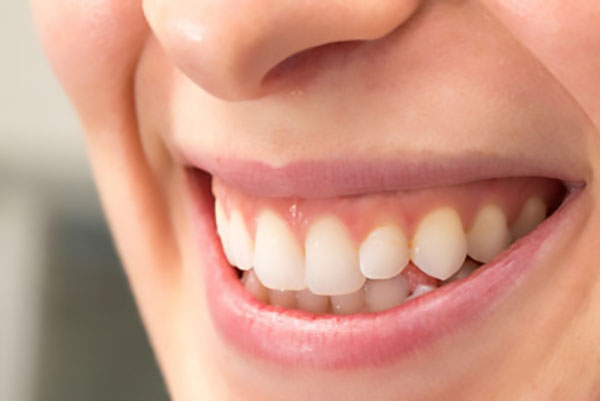 Reasons To Get  Teeth Whitening Trays From A Dentist
